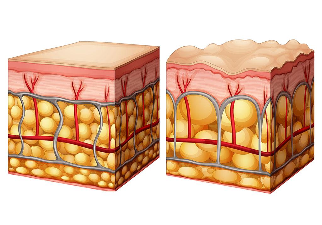 cellulitisz